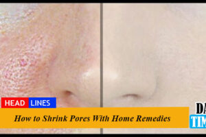 How to Shrink Pores With Home Remedies