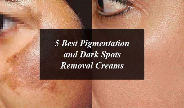 5 Best Pigmentation And Dark Spots Removal Creams In Pakistan