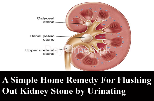 A Simple Home Remedy For Flushing Out Kidney Stone by Urinating