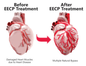 EECP Therapy in Pakistan