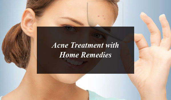 Acne Treatment with Home Remedies