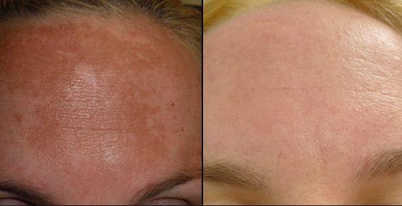 HydraFacial For hyperpigmentation