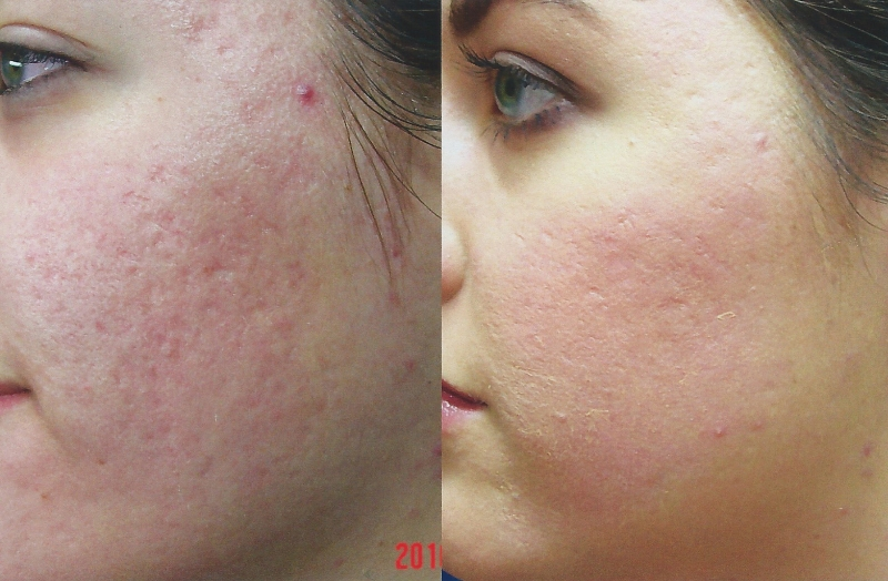 HydraFacial For Acne and Acne Scar