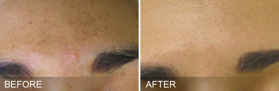 What are the HydraFacial treatment Results?