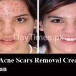Top 5 Acne Scar Removal Creams in Pakistan