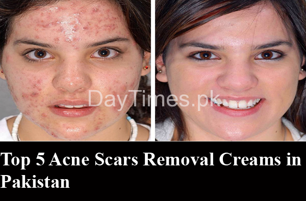 Top 5 Acne Scar Removal Creams In Pakistan Daytimes Pk