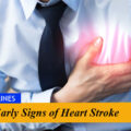Early Signs of Heart Stroke