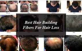 Best Hair Building Fibers For Hair Loss