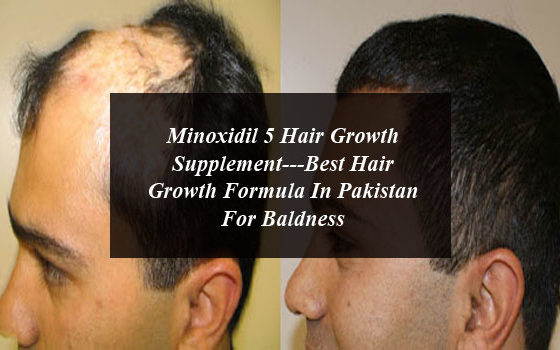Minoxidil 5 Hair Growth Supplement---Best Hair Growth Formula In Pakistan For Baldness