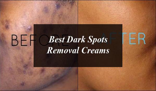 Top 5 Acne Scar Removal Creams In Pakistan Daytimes Pk