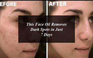 4 Best Dark Spots Removal Creams in Pakistan