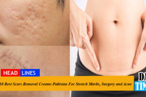 10 Best Scar Removal Creams in Pakistan For Stretch Marks, Surgery and Acne